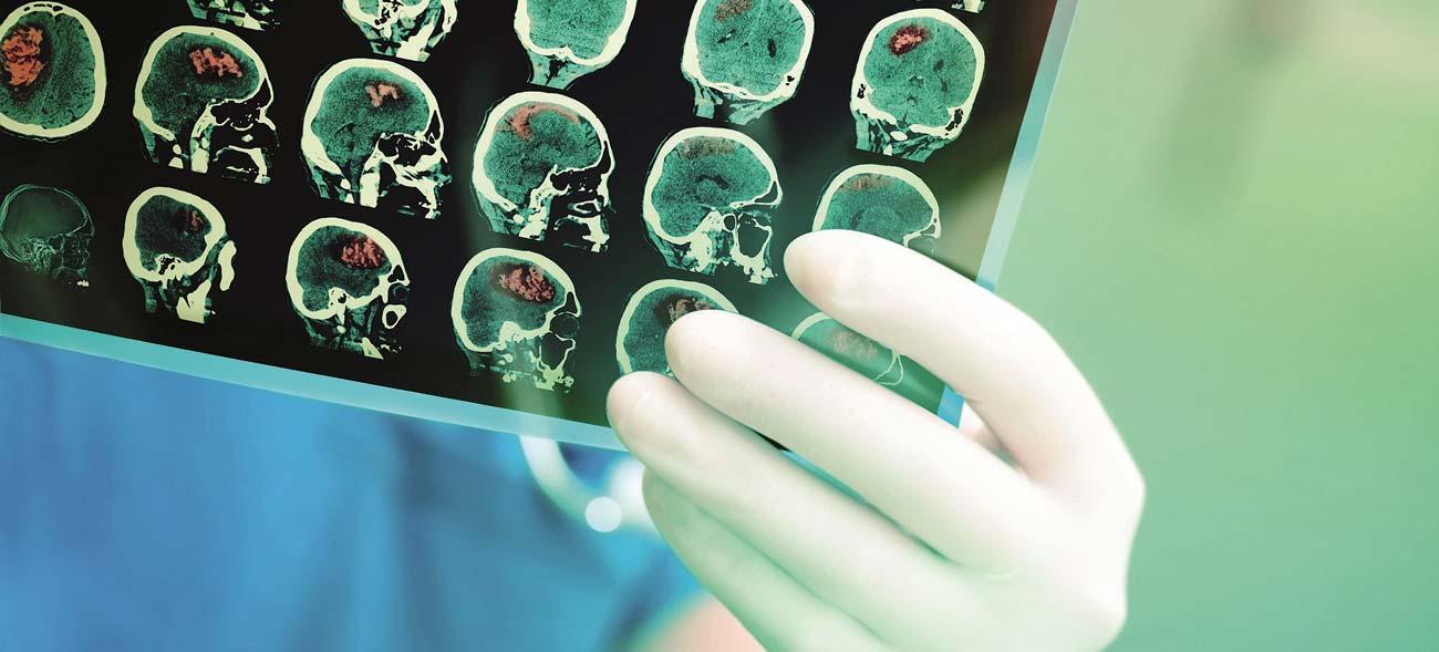 Tumortherapiefelder gegen Hirntumore: Krankenkassen übernehmen die Kosten